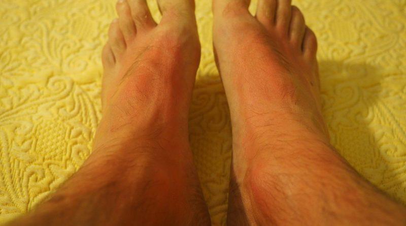 Dermatologista orienta quanto a prevenção de câncer de pele